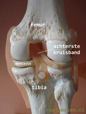 Movie Posterior Cruciate Ligament Injury Knee