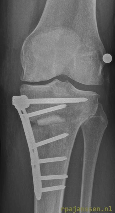X-ray after osteotomy