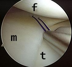 Knee arthroscopy with meniscus repair (f=femur, m=meniscus, t=tibia)